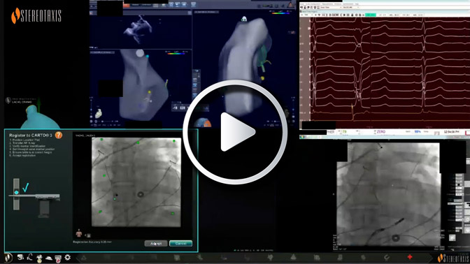 Navigating in the Ventricle for Arrhythmias Originating from the RVOT Freewall